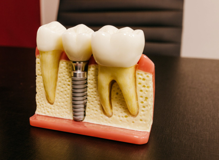 Root Canal dental treatment